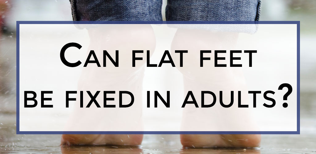 Can flat feet be fixed in adults?