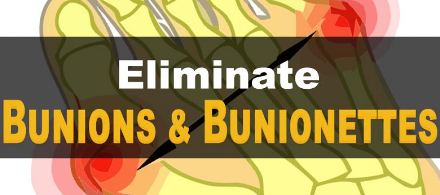eliminate-bunions-and-bunionettes